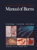 Manual of Burns