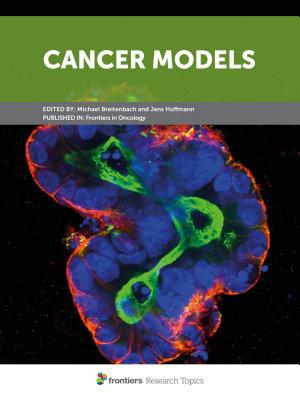 Cancer Models
