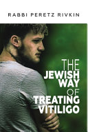The Jewish Way of Treating Vitiligo PDF
