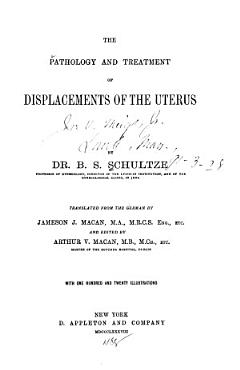 The Pathology and Treatment of Displacements of the Uterus PDF