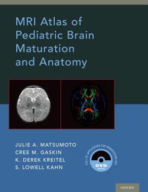 MRI Atlas of Pediatric Brain Maturation and Anatomy