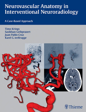 Neurovascular Anatomy in Interventional Neuroradiology: A Case-Based Approach