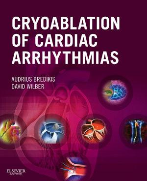 Cryoablation of Cardiac Arrhythmias E-Book