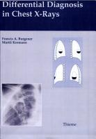 Differential Diagnosis in Chest X Rays PDF
