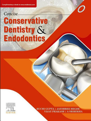 Concise Conservative Dentistry and Endodontics  E Book PDF