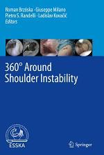 360° Around Shoulder Instability