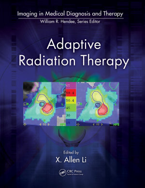 Adaptive Radiation Therapy