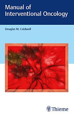 Manual of Interventional Oncology PDF