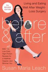 Before After Second Revised Edition Book PDF