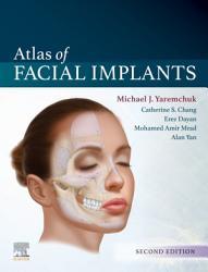 Atlas of Facial Implants E Book PDF