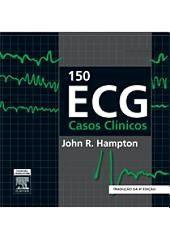 150 ECG Casos Clinicos: Edição 4