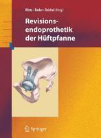 Revisionsendoprothetik der H  ftpfanne PDF