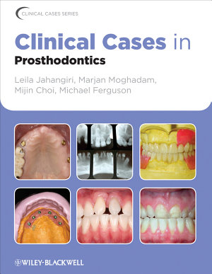 Clinical Cases in Prosthodontics PDF