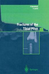 Fractures of the Tibial Pilon