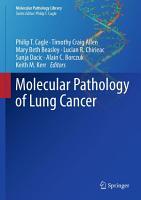 Molecular Pathology of Lung Cancer PDF