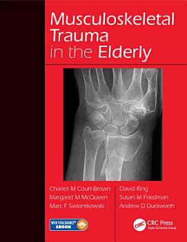 Musculoskeletal Trauma in the Elderly PDF