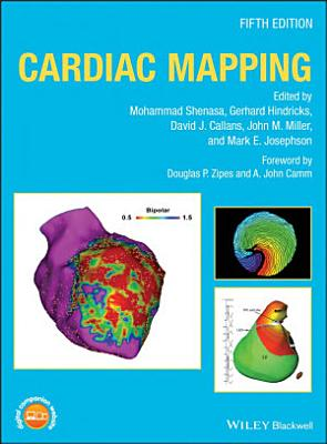 Cardiac Mapping
