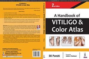 A Handbook of Vitiligo   Color Atlas PDF