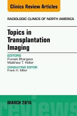 Topics in Transplantation Imaging, An Issue of Radiologic Clinics of North America, E-Book