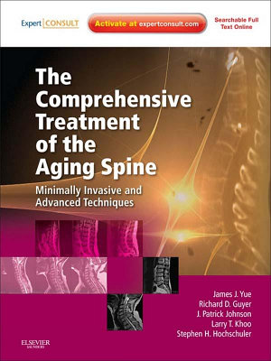 The Comprehensive Treatment of the Aging Spine E Book PDF