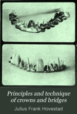 Principles and technique of crowns and bridges