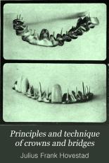 Principles and technique of crowns and bridges PDF