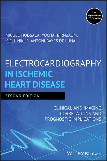 Electrocardiography in Ischemic Heart Disease PDF