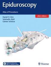 Epiduroscopy: Atlas of Procedures