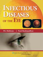 Infectious Diseases of the Eye