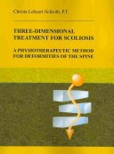Three dimensional Treatment for Scoliosis PDF