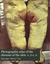 Photographic atlas of the diseases of the skin. v. 2 c. 2: Volume 2