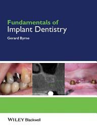Fundamentals Of Implant Dentistry Book PDF