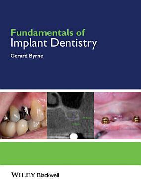 Fundamentals of Implant Dentistry PDF