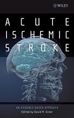 Acute Ischemic Stroke PDF