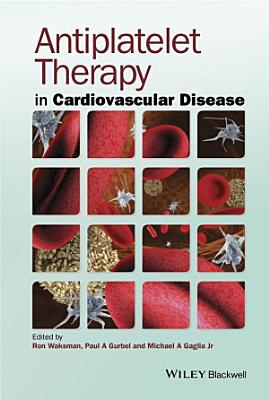 Antiplatelet Therapy in Cardiovascular Disease