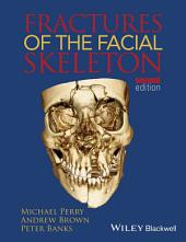 Fractures of the Facial Skeleton: Edition 2