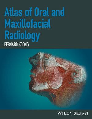 Atlas of Oral and Maxillofacial Radiology PDF