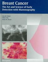 Breast Cancer PDF