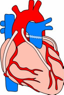 Fast Facts for Cardiac Surgery 2014