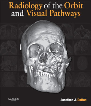 Radiology of the Orbit and Visual Pathways E-Book