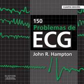 150 problemas de ECG: Edición 4