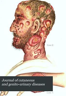 Journal of Cutaneous and Genito urinary Diseases PDF