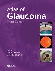 Atlas of Glaucoma