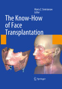 The Know How of Face Transplantation PDF