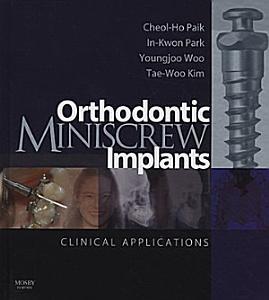 Orthodontic Miniscrew Implants
