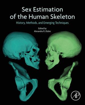 Sex Estimation of the Human Skeleton