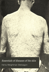 Essentials of Diseases of the Skin: Including the Syphilodermata, Arranged in the Form of Questions and Answers, Prepared Especially for Students of Medicine