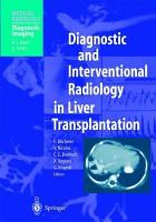 Diagnostic and Interventional Radiology in Liver Transplantation PDF