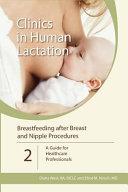 Breastfeeding After Breast and Nipple Procedures