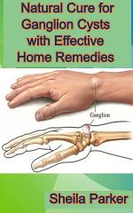 Natural Cure for Ganglion Cysts with Effective Home Remedies